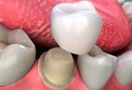 انواع روکش دندان و ایمپلنت