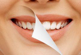 درمان دندان های بدشکل
