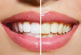 بلیچینگ( سفید کردن دندان )