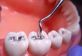 پر کردن دندان ها و ترمیم
