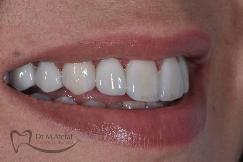 انواع کامپوزیت دندان زیر نظر بهترین متخصص کامپوز یت دندان در اصفهان