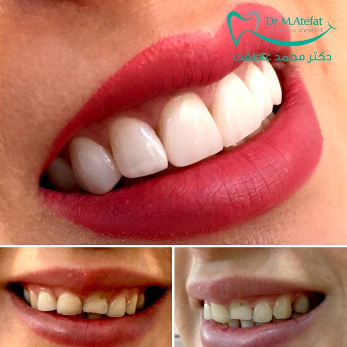 اصلاح طراحی لبخند