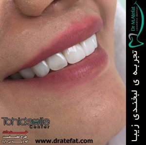 لامینیت دندان