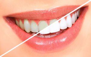 بلیچینگ (سفید کردن دندانها) چيست؟