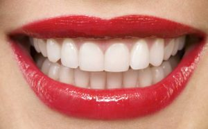مراحل انجام اصلاح طرح لبخند