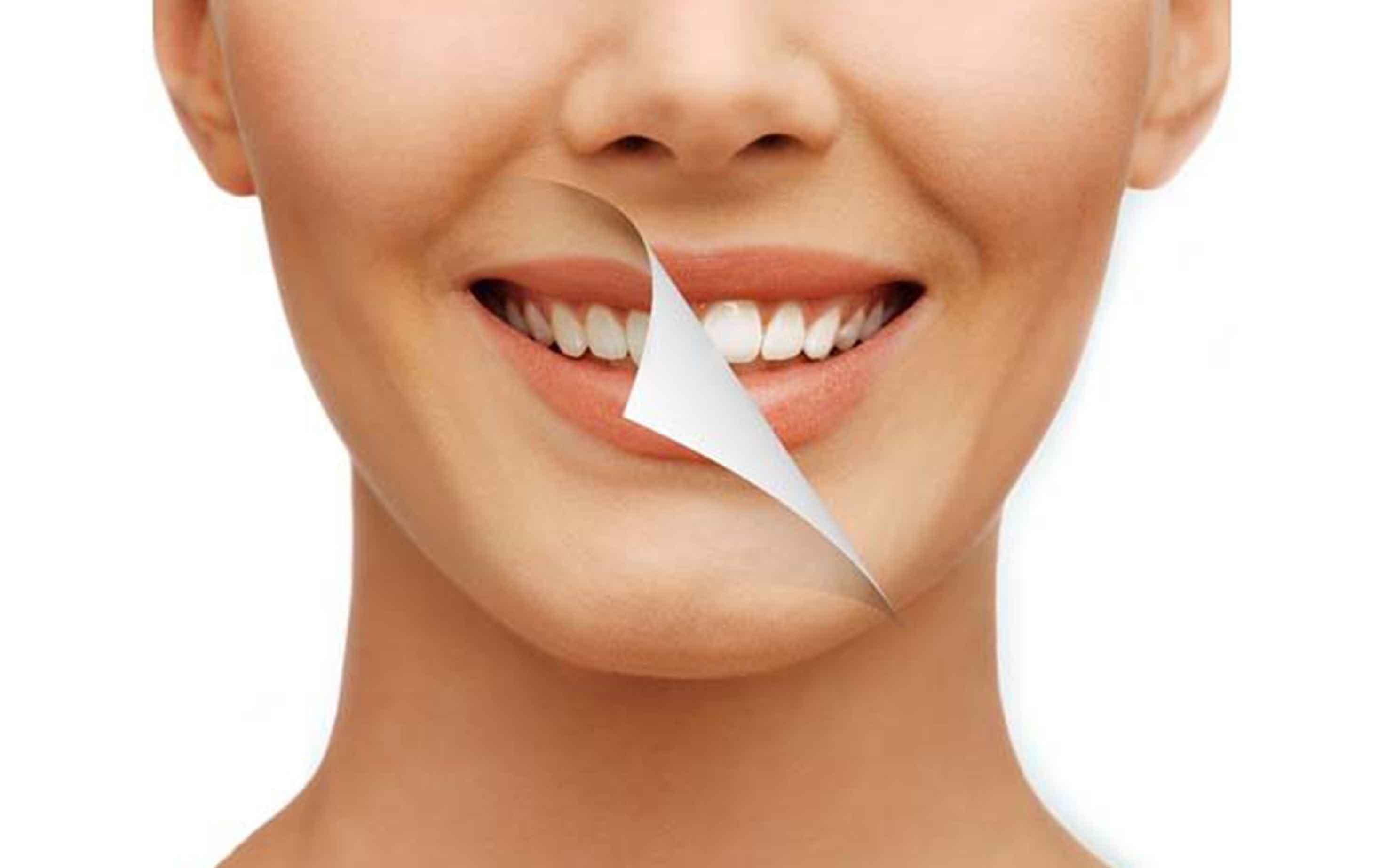 مزایای بلیچنگ دندان ها
