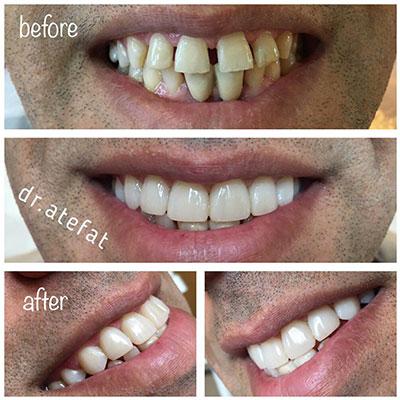 بستن فضای بین دندان ها