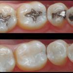 کامپوزیت پر کردن دندان