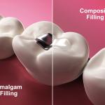 بهترین دندانپزشک کامپوزیت دندان در اصفهان