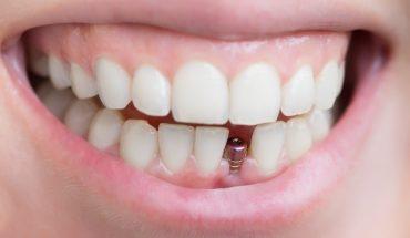 علل ضعیف شدن و افتادن دندان ها