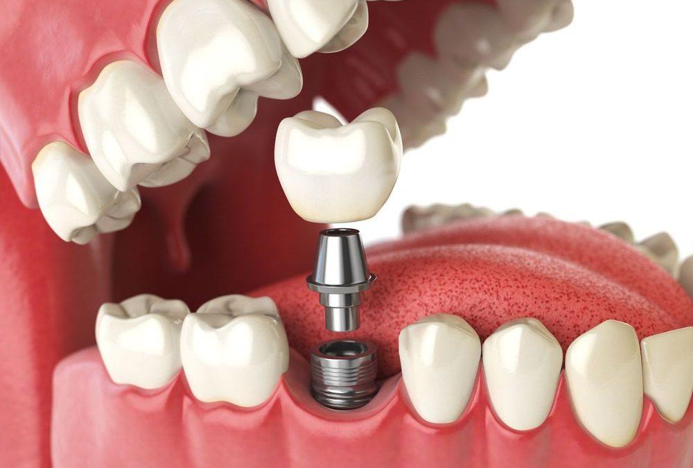 تاج سرامیکی دندان