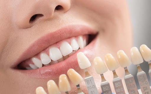 لامینیت سرامیکی دندان