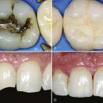 ترمیم دندان های خلفی با کامپوزیت
