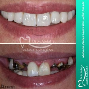 انواع ایمپلنت قبل و بعد از جایگزینی دندانها با ایمپلنت و روکشهای تمام سرامیکی