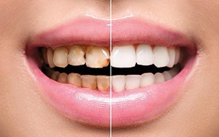 لکه دار شدن دندان ها