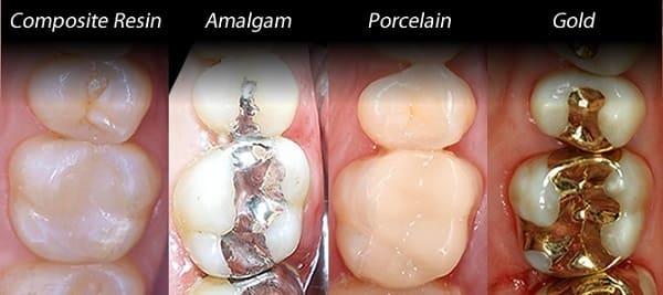 انواع مواد پرکننده دندان و ویژگی های آنها